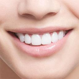 歯を綺麗にする方法!