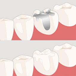 審美歯科の2つの保険システム。