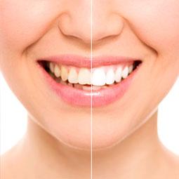 審美歯科のオススメ治療法!